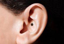 nốt ruồi ở tai phụ nữ