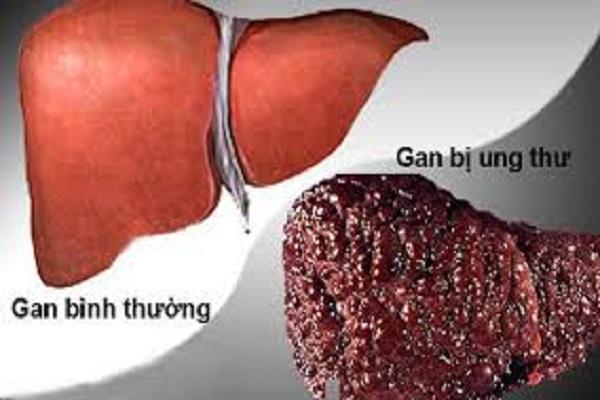 Bệnh ung thư gan là gì?