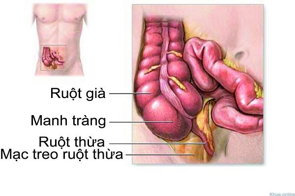 Viêm ruột thừa là bệnh gì?