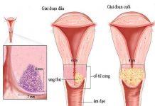 Nguyên nhân dẫn đến bệnh ung thư buồng trứng