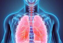 Bệnh ung thư phổi là bệnh gì?