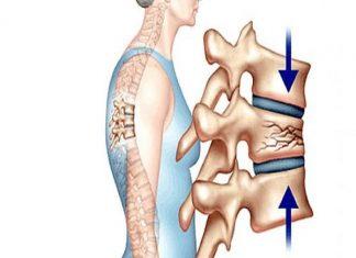 Người mắc bệnh loãng xương nên ăn gì?